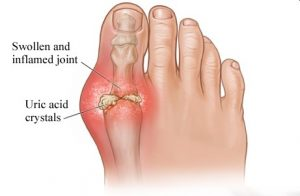 Homeopathic Treatment for Gout1