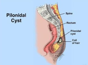 Homeopathic Treatment for Pilonidal Sinus