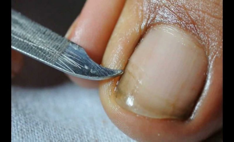 Homeopathic Remedies for Nail Fungus