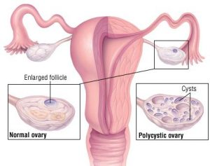 homeopathic remedies for PCOS