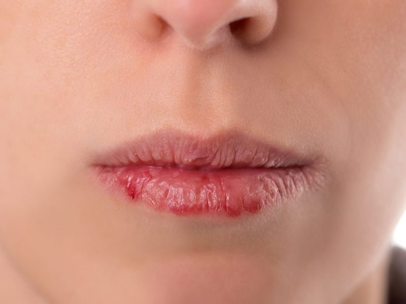 homeopathic remedies for dry mouth