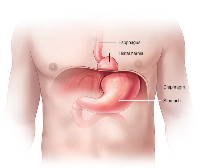 Homeopathic Medicine for Hiatus Hernia
