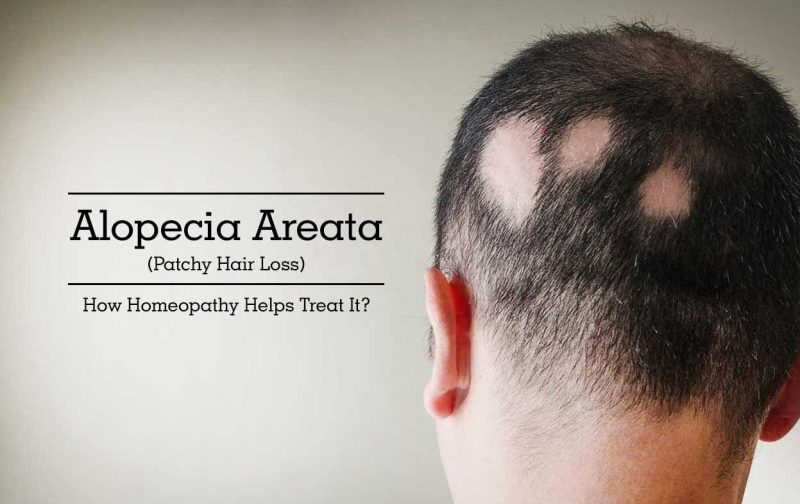 Homeopathic Medicine for Alopecia Areata