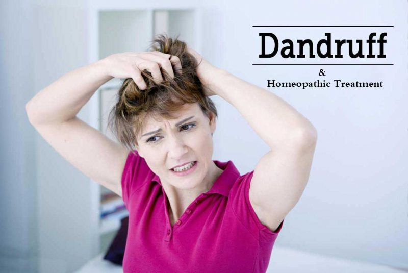 Homeopathic Medicine for Dandruff