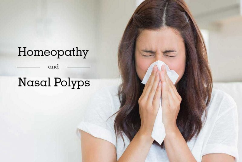 Homeopathic Medicine for Nasal Polyps