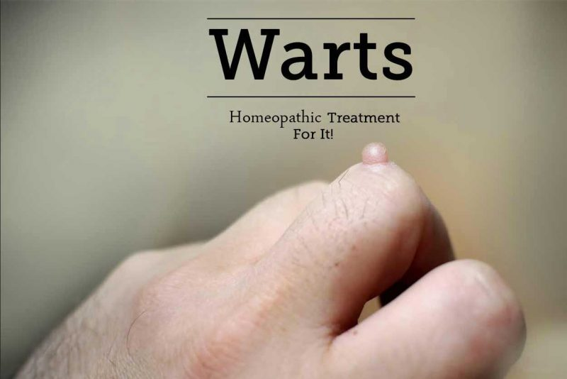 Homeopathic Medicine for Warts