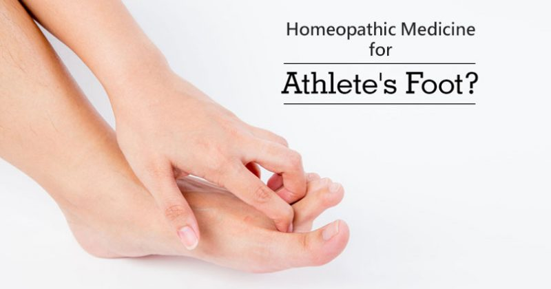 Homeopathic Remedies for Athlete's Foot
