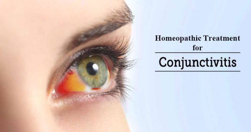 Homeopathic Medicine for Conjunctivitis - Treatment for