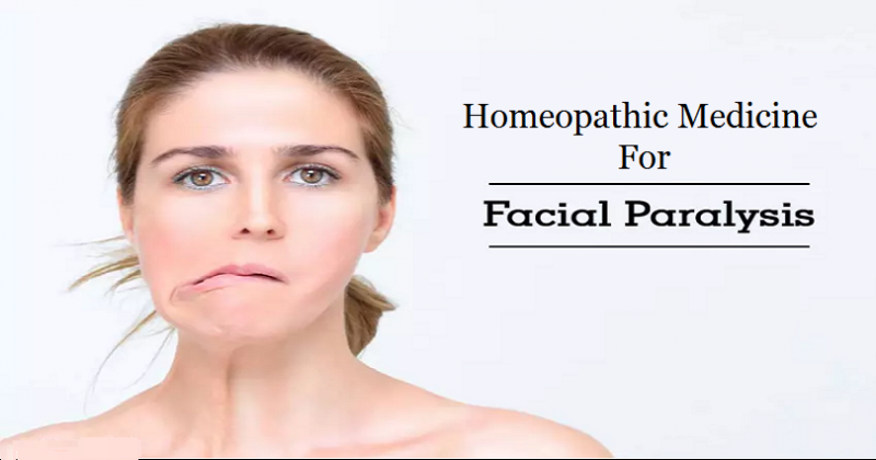homeopathic medicine for bell's palsy