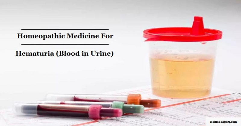 Homeopathic Medicine for Blood in urine