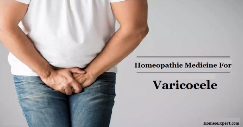 Homeopathic Medicine for Varicocele