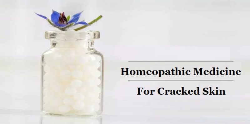 Homeopathic Medicine for Cracked Skin