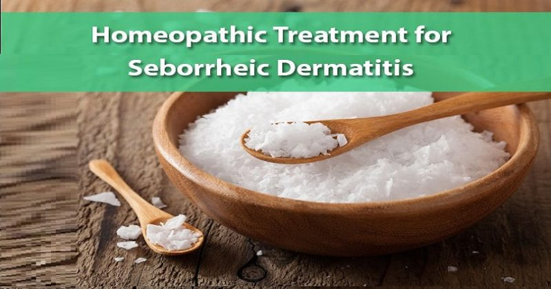 Homeopathic Remedies for Seborrheic Dermatitis