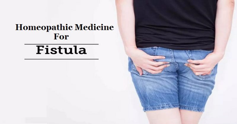 homeopathic medicine for fistula