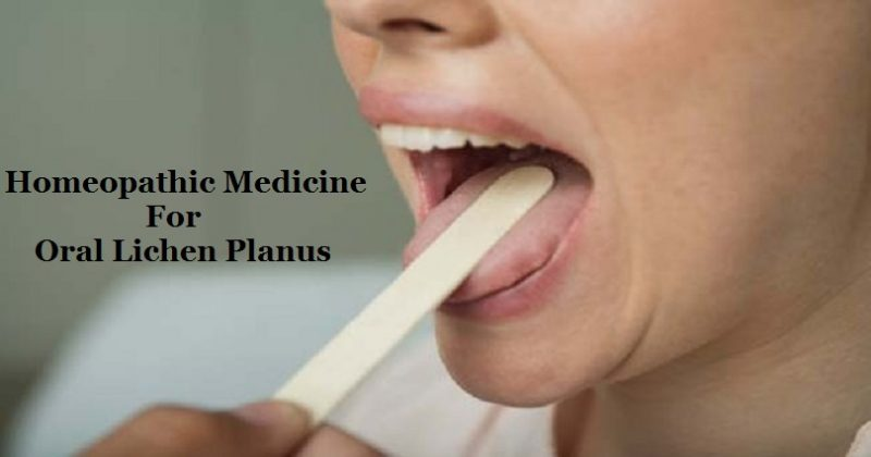 homeopathic treatment for Oral Lichen Planus