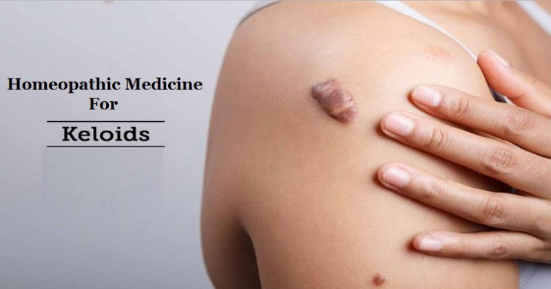 homeopathic medicine for keloid