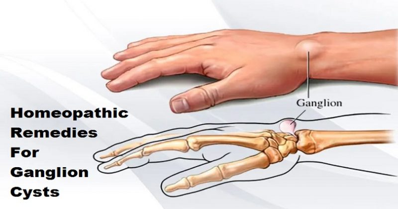 homeopathic remedies for ganglion cysts