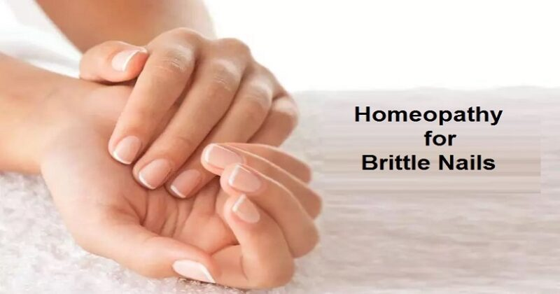 homeopathic remedies for brittle nails