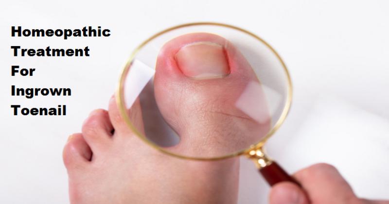 homeopathic medicine for ingrown toenail