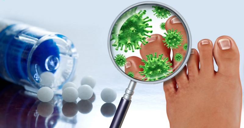 homeopathic remedies for paronychia
